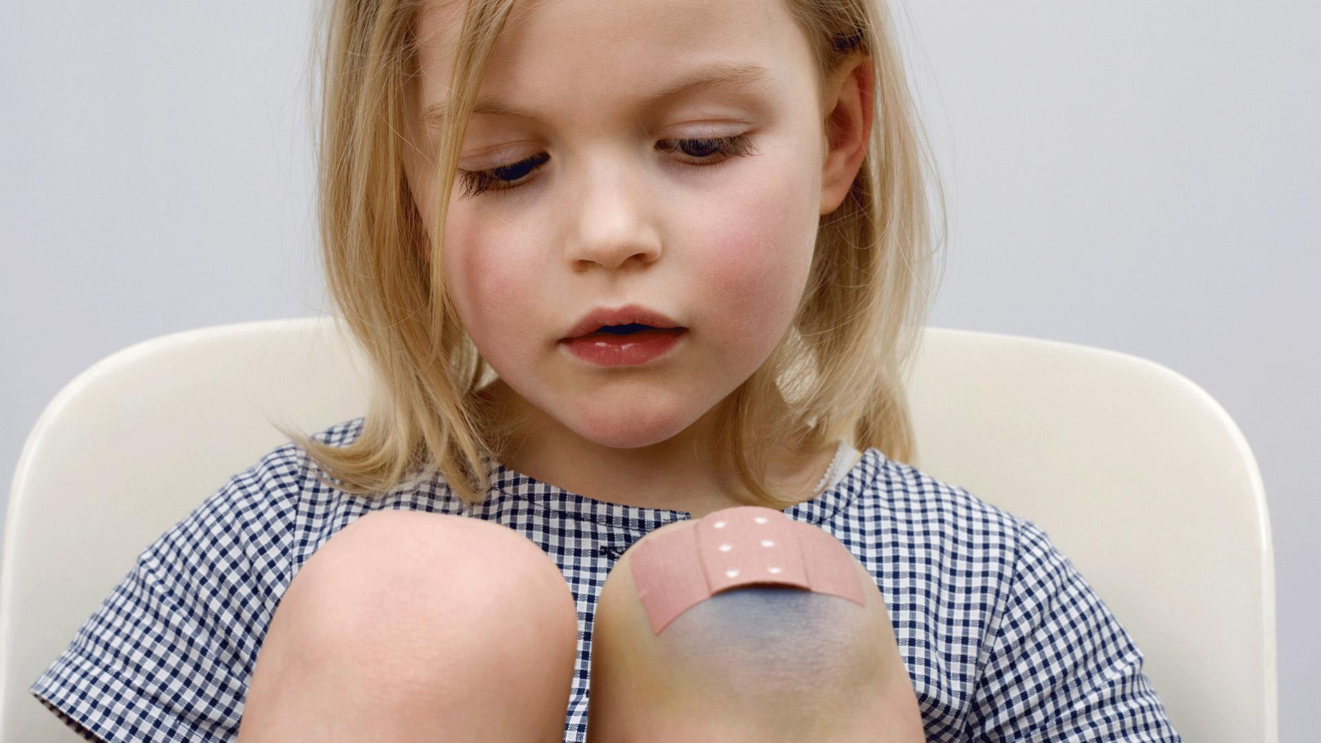 manchas de golpes en la piel