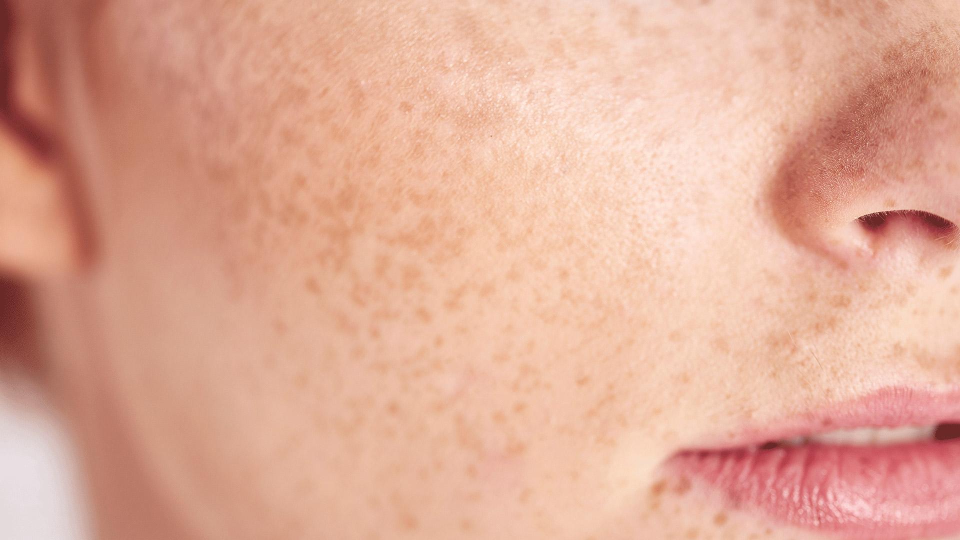 Mascarilla para piel irritada y sensible